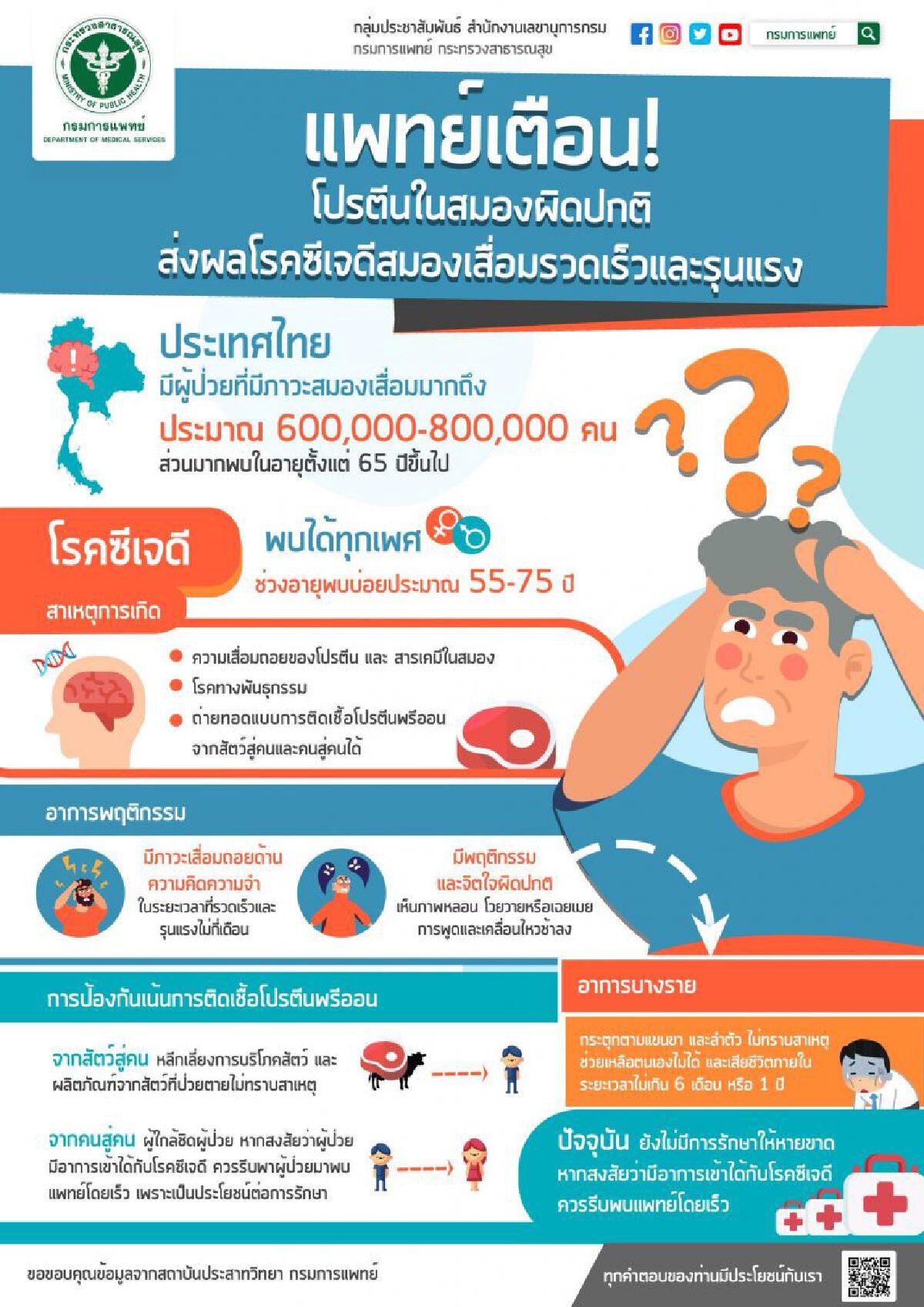 แพทย์เตือนโปรตีนในสมองผิดปกติ เสี่ยงภาวะสมองเสื่อมรุนแรง